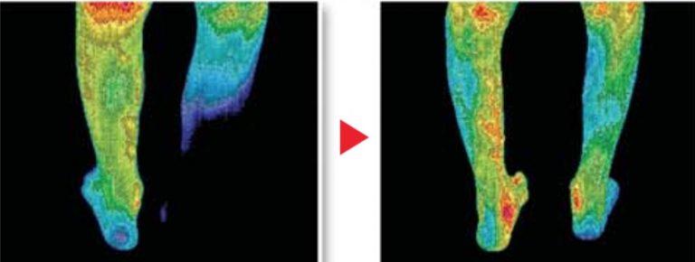 Amethyst-Biomat-legs-circulation-e1482162340605-768x290